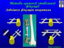Методи сучасної стабільної фіксації Зовнішня фіксація апаратами Проф. Сулима ...