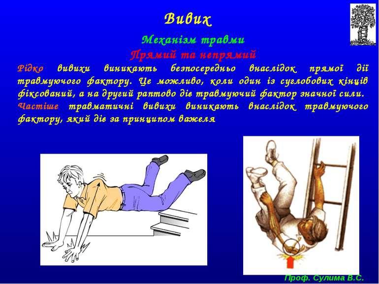 Механізм травми Прямий та непрямий Рідко вивихи виникають безпосередньо внасл...