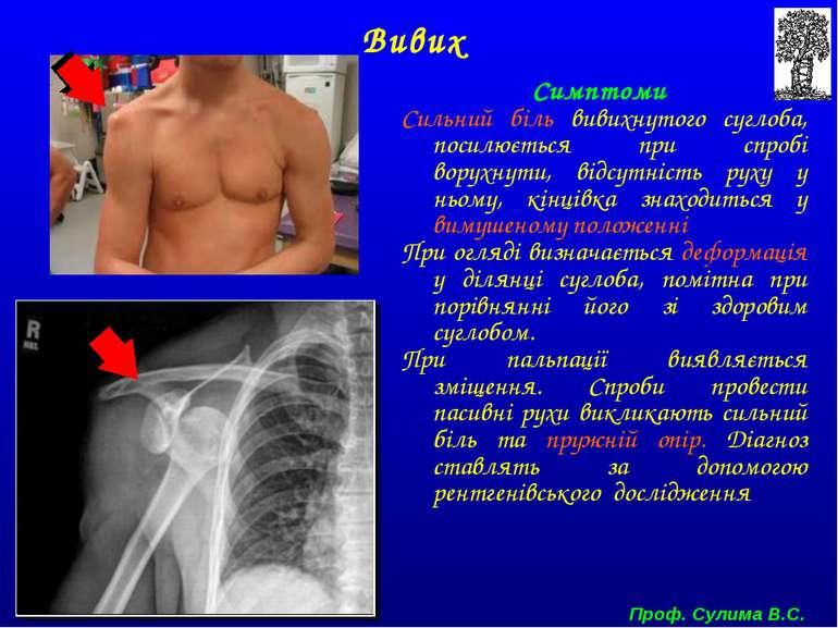 Симптоми Сильний біль вивихнутого суглоба, посилюється при спробі ворухнути, ...