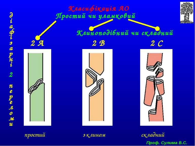 діафізарні 2 переломи простий з клином складний 2 А 2 В 2 С Класифікація АО П...
