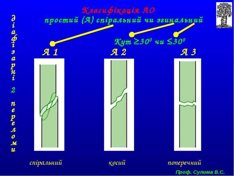 простий (А) спіральний чи згинальний А 1 А 2 А 3 спіральний косий поперечний ...