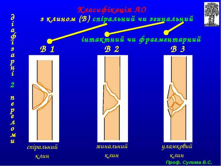 В 1 В 2 В 3 спіральний клин згинальний клин уламковий клин Класифікація АО ді...
