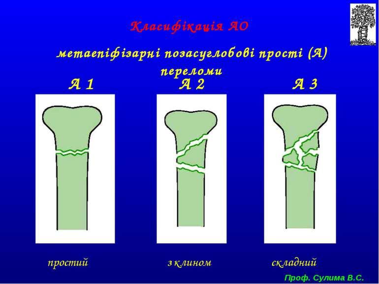 Класифікація АО метаепіфізарні позасуглобові прості (А) переломи А 1 А 2 А 3 ...