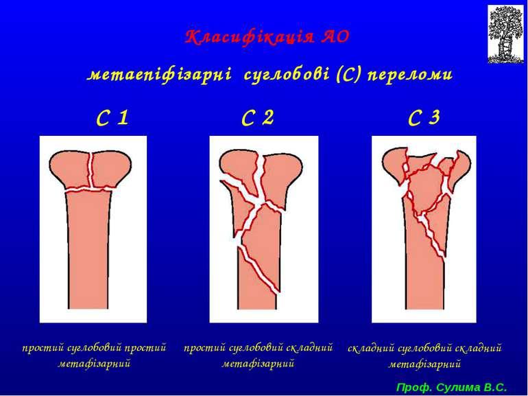 Класифікація АО метаепіфізарні суглобові (С) переломи С 1 С 2 С 3 простий суг...