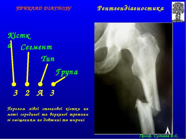 Кістка Сегмент Тип Група 3 2 А 3 ПРИКЛАД ДІАГНОЗУ Перелом лівої стегнової кіс...