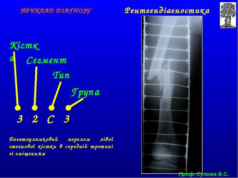 Кістка Сегмент Тип Група 3 2 С 3 ПРИКЛАД ДІАГНОЗУ Багатоуламковий перелом лів...