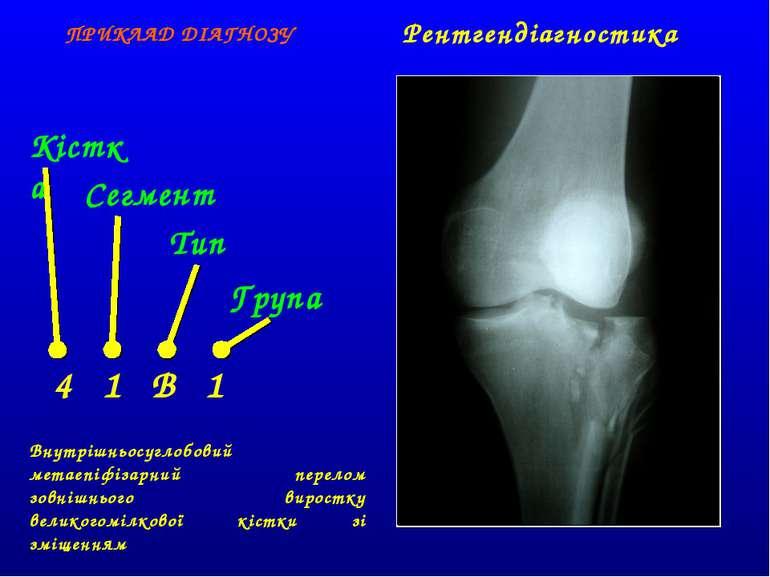 Кістка Сегмент Тип Група 4 1 B 1 ПРИКЛАД ДІАГНОЗУ Внутрішньосуглобовий метаеп...