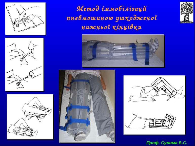 Метод іммобілізації пневмошиною ушкодженої нижньої кінцівки Проф. Сулима В.С.
