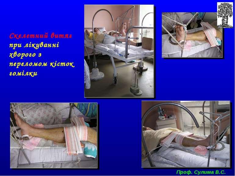 Скелетний витяг при лікуванні хворого з переломом кісток гомілки Проф. Сулима...