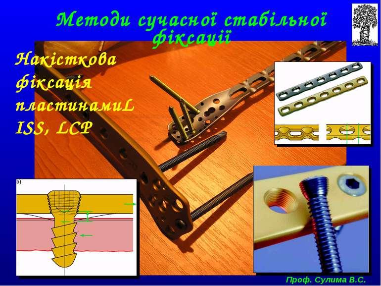 Методи сучасної стабільної фіксації Накісткова фіксація пластинамиLISS, LCP П...