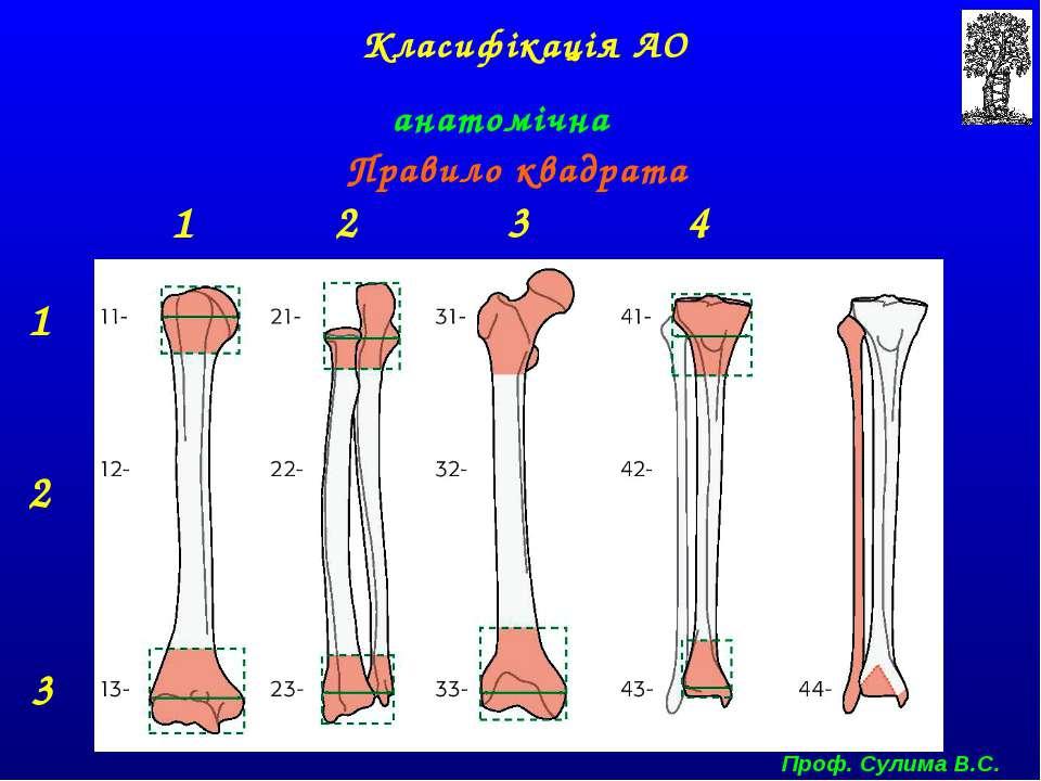 Класифікація АО анатомічна Правило квадрата 1 2 3 1 2 3 4 Проф. Сулима В.С.