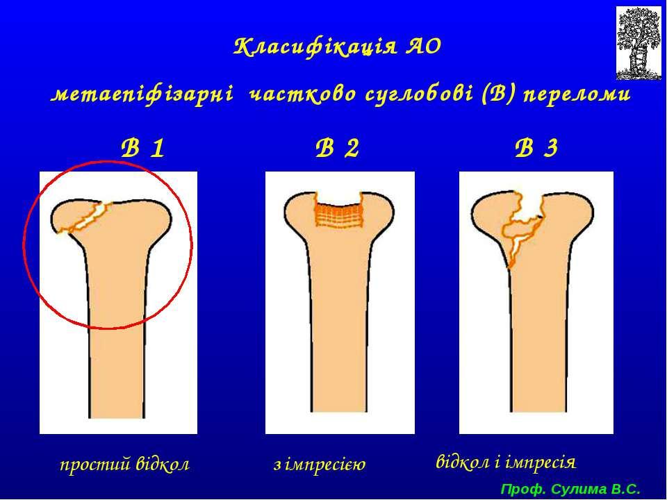 Класифікація АО метаепіфізарні частково суглобові (В) переломи В 1 В 2 В 3 пр...