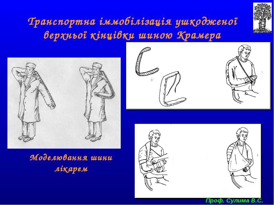 Моделювання шини лікарем Транспортна іммобілізація ушкодженої верхньої кінців...