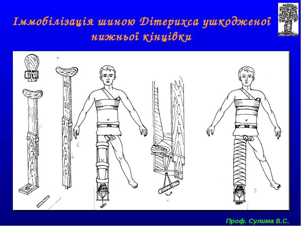 Іммобілізація шиною Дітерихса ушкодженої нижньої кінцівки Проф. Сулима В.С.