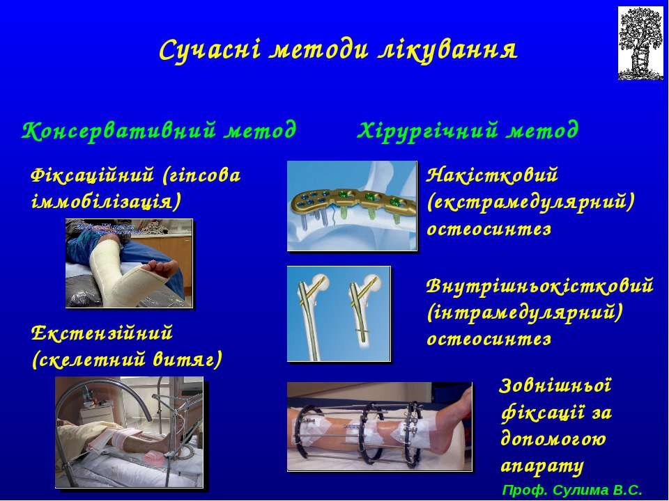 Сучасні методи лікування Консервативний метод Хірургічний метод Фіксаційний (...