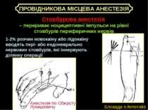 ПРОВІДНИКОВА МІСЦЕВА АНЕСТЕЗІЯ Стовбурова анестезія – перериває ноцицептивні ...