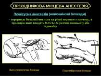 Плексусна анестезія (новокаїнові блокади) – перериває больові імпульси на рів...