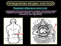 Паравертебральна анестезія – перериває больові імпульси на рівні спинномозков...