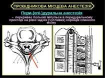 Пери-(епі-)дуральна анестезія – перериває больові імпульси в перидуральному п...