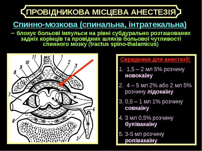 Середники для анестезії: 1. 1,5 – 2 мл 5% розчину новокаїну 2. 4 – 5 мл 2% аб...