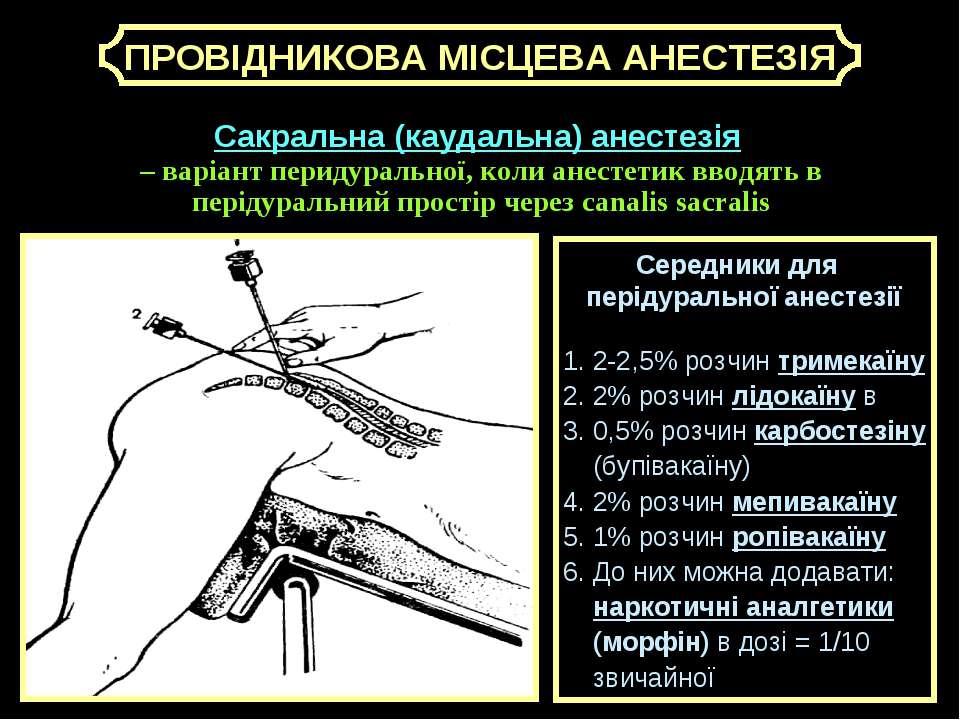 ПРОВІДНИКОВА МІСЦЕВА АНЕСТЕЗІЯ Сакральна (каудальна) анестезія – варіант пери...