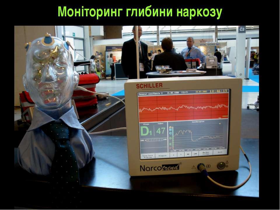 Моніторинг глибини наркозу