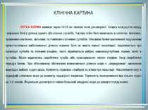 КЛІНІЧНА КАРТИНА ЛЕГКА ФОРМА виникає через 10-15 хв і пізніше після декомпрес...