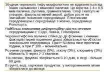 Збудник черевного тифу морфологічно не відрізняється від інших сальмонел і ки...