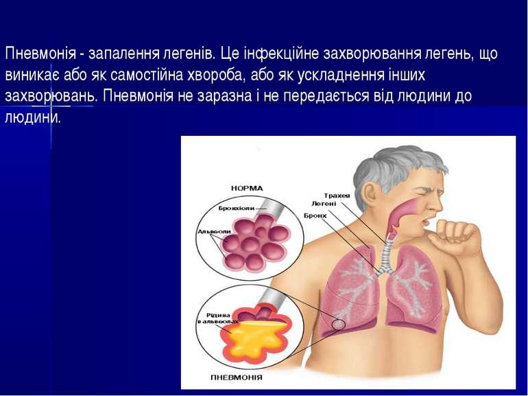 Пневмонія - запалення легенів. Це інфекційне захворювання легень, що виникає ...