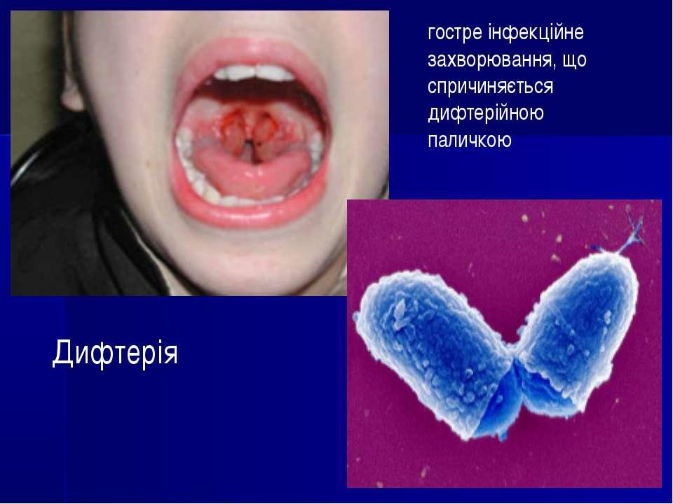 Дифтерія гостре інфекційне захворювання, що спричиняється дифтерійною паличкою