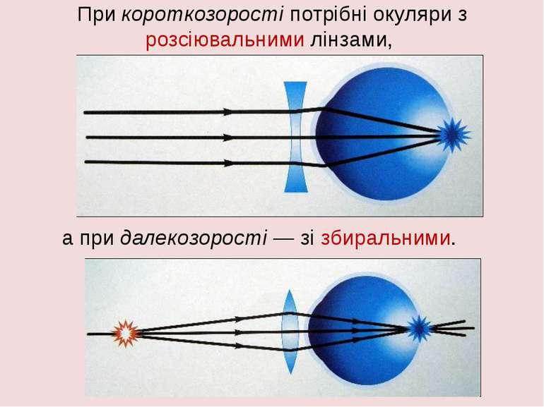 При короткозорості потрібні окуляри з розсіювальними лінзами, а при далекозор...