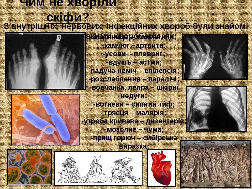Чим не хворіли скіфи? З внутрішніх, нервових, інфекційних хвороб були знайомі...