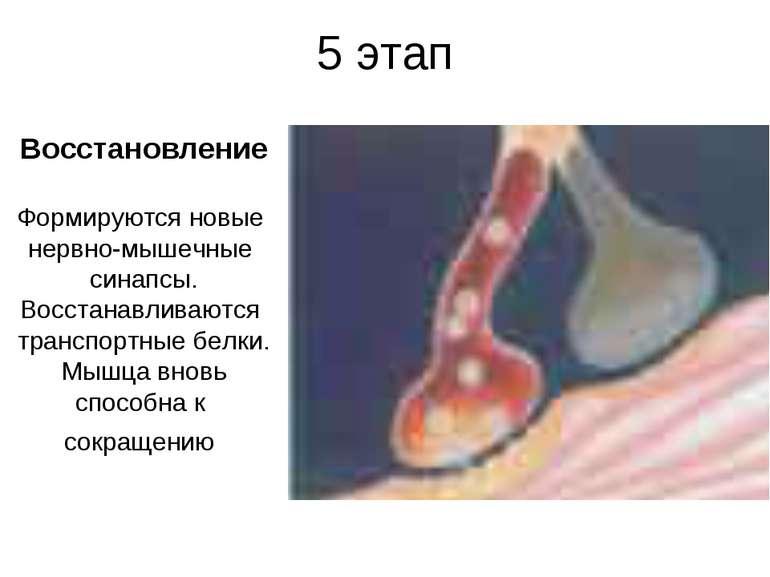 5 этап Восстановление Формируются новые нервно-мышечные синапсы. Восстанавлив...