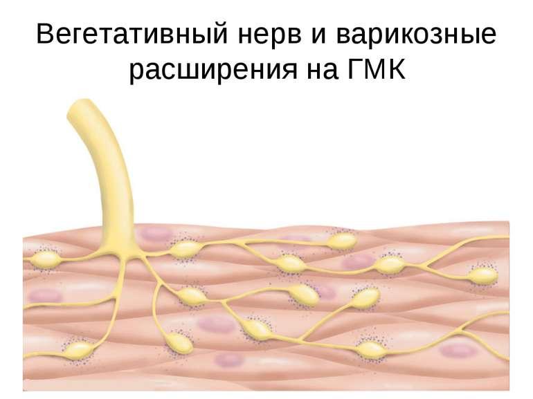 Вегетативный нерв и варикозные расширения на ГМК