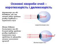 Короткозоре око або видовжене, або має менший радіус кривизни рогівки порівня...