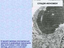 В просвіті капіляра спостерігається злипання та деформація еритроцитів (Ер), ...