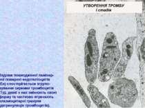 Вздовж пошкодженої ламінар- ної поверхні ендотеліоцитів (Ен) спостерігається ...