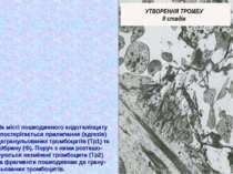 На місті пошкодженого ендотеліоциту спостерігається прилипання (адгезія) дегр...