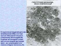 В саркоплазмі кардіоміоцита між міофібрилами (Мф) спостері- гається збільшенн...