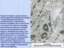 Пухлинні клітини саркоми містять великі ядра (Я) неправильної форми з нерівно...