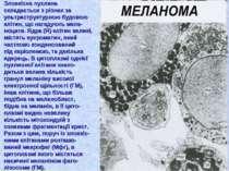 Злоякісна пухлина складається з різних за ультраструктурною будовою клітин, щ...