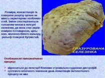 Розміри, консистенція та поверхня розрізу органа не мають характерних особлив...
