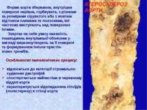 Форма аорти збережена, внутрішня поверхня нерівна, горбкувата, з різними за р...