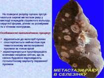 На поверхні розрізу органа зустрі- чаються окремі метастази раку у вигляді ос...