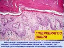 Мікропрепарат зафарбований гематоксиліном та еозином. Звертає на себе увагу п...