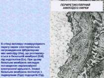 В стінці капіляру гломерулярного парату нирки спостерігається нагромадження ф...