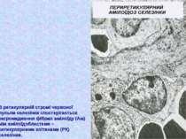 В ретикулярній стромі червоної пульпи селезінки спостерігається нагромадження...
