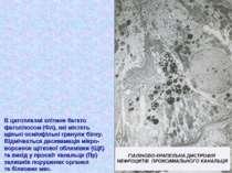 В цитоплазмі клітини багато фаголізосом (Фл), які містять щільні осміофільні ...
