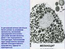 В цитоплазмі клітини міститься багато різних за розмірами меланосом, заповнен...