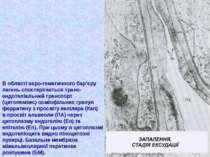 В області аеро-гематичного бар'єру легень спостерігається транс- ендотеліальн...